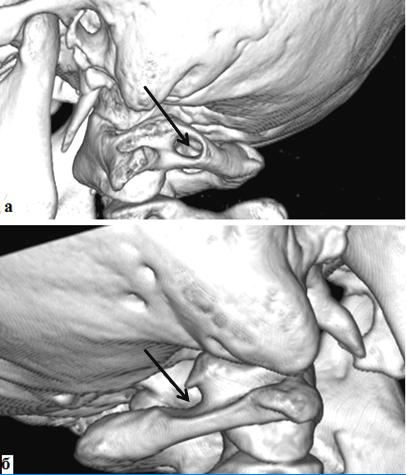 Девиация основной артерии