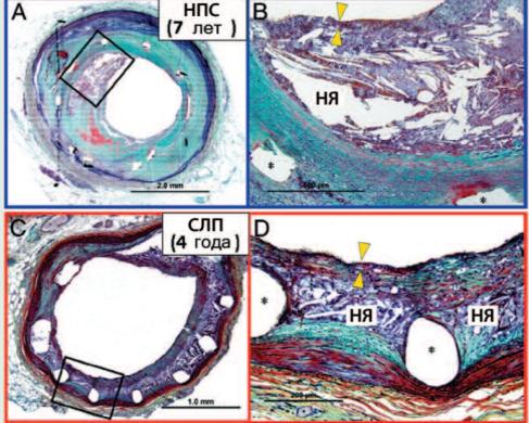 Рестеноз коронарных артерий после стентирования